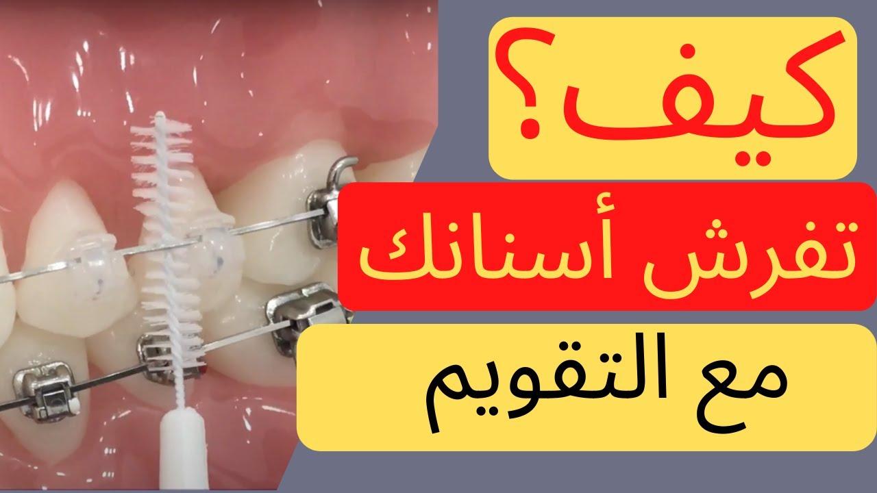 أفضل وأسهل طريقة لتفريش الأسنان مع التقويم الدكتور محمد صادقلي Youtube