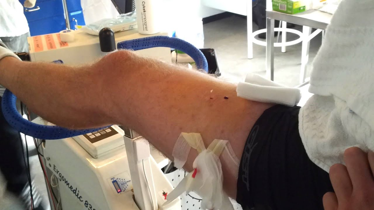 fast muscle biopsy in denmark - youtube, Muscles