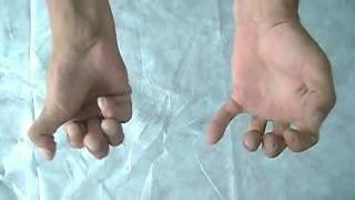 Микрохирургия кисти - движения кистью после операции(Пациент У., 49 лет, получил производственную травму правой кисти при неосторожном обращении с циркулярной..., 2012-08-02T07:05:17.000Z)