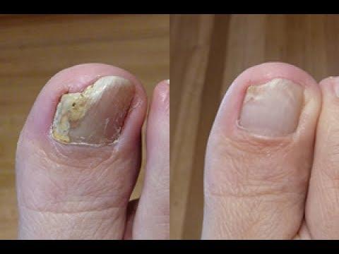Image result for penyakit kuku jamuran