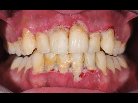 Prevent Dental Plaque and Plaque Removal! (How To)