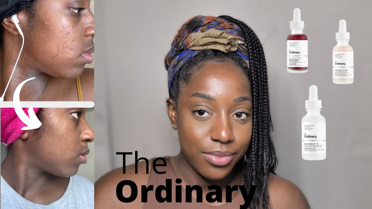 Download Revue THE ORDINARY. ADIEU boutons, taches, hyper pigmentation !