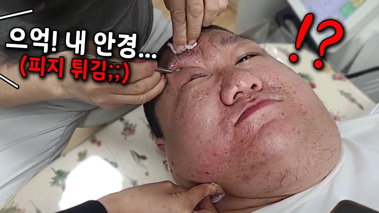 [약혐주의] 여드름 짜던 도중 의사선생님 얼굴에 피지가 튀겼습니다;;