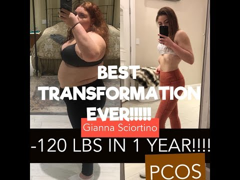 WEIGHT LOSS TRANSFORMATION STORY | -120 LBS | PCOS | Happier & Healthier | Journey to self love | Mp3