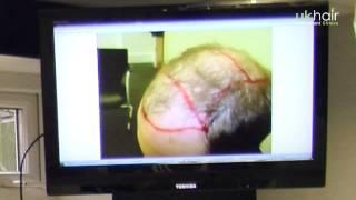 How Many Hair Grafts Do I Need? | UK Hair Transplant Clinics
