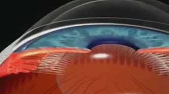 Iridotomia Laser Youtube