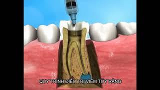 Điều trị tủy răng sâu tại Hải Dương