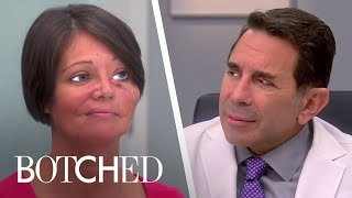 "5 Most Supportive ""Botched"" Families 
