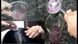 How To Use Onion Juice For Hair Regrowth/Dandruff/ Hair fall Control/ Premature Greying Of Hair