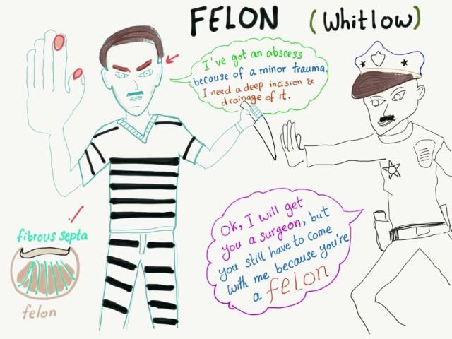 Felon abscess (Whitlow) mnemonic, Pass your surgery shelf