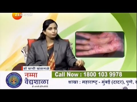 Psoriasis & Vitiligo |  Dr Prachi |Namma Vaidyashaala