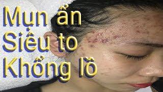 Cách điều trị mụn ẩn, mụn cám,mụn đầu đen hiệu quả - Hiền Vân spa! Học nghề Spa online  - bài 113