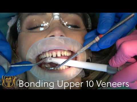 Dr. Davis bonds upper ten veneers