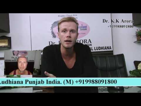 Kasimir Holland | Hair Transplant In India (9988091800)