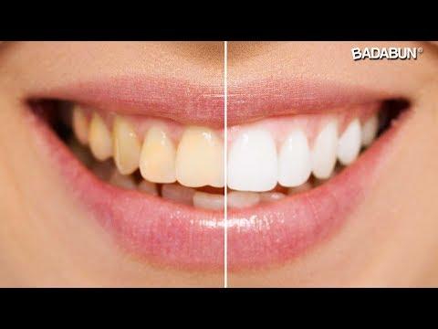 trucos para blanquear los dientes al instante