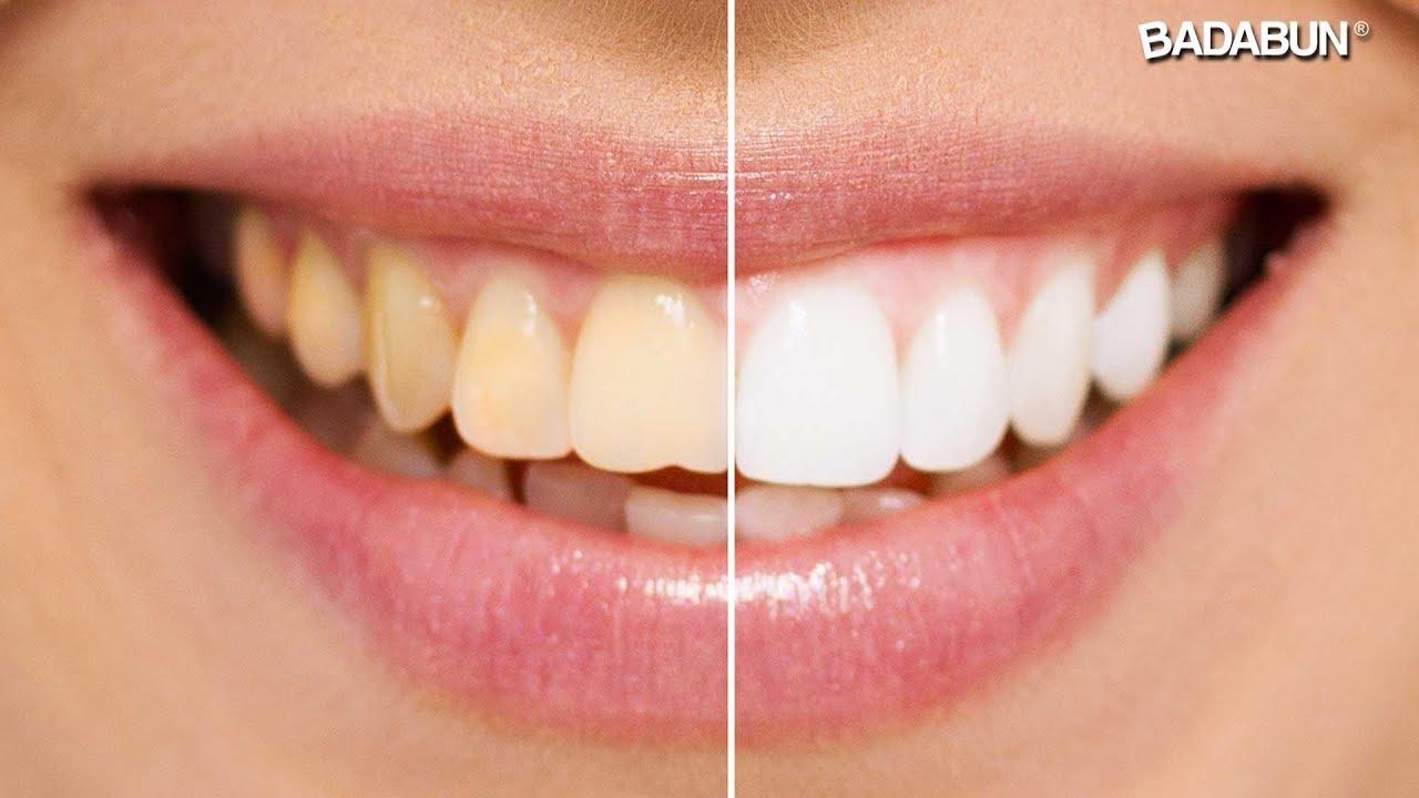 como limpiar los dientes con bicarbonato y sal