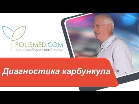 Диагностика карбункула. Фурункул, гидраденит, флегмона, абсцесс или карбункул