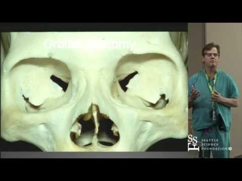 Craniotomy for Anterior Circulation Aneurysms & Basilar Tip by Johnny Delashaw, M.D.