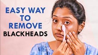 How to Remove Blackheads & Whiteheads!   Nature Nurture