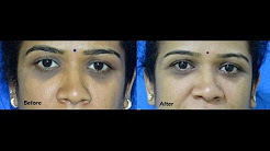 Remove Dark Circles Under Eye - WhatsApp 8050008855 - Surgical Treatment Procedures in  Bangalore