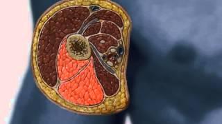 VTS 02 1 Топографическая анатомия аксиллярной области