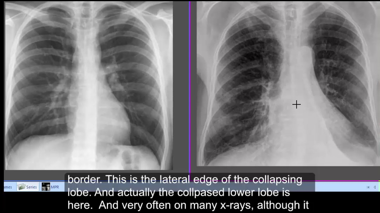 Chest x-ray, Left lower lobe collapse - CT chest lower ...   1280 x 720 jpeg 126kB