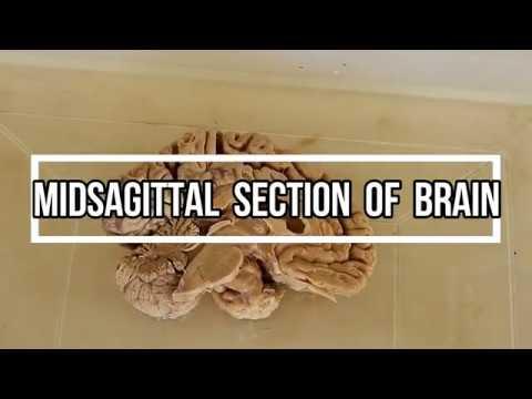 Midsagittal Section of Brain