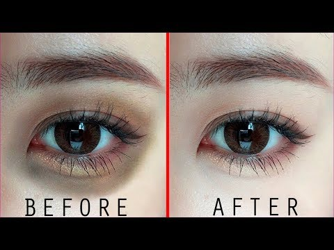 Apply Turmeric on Your Under Eye Dark Circles and See the ...