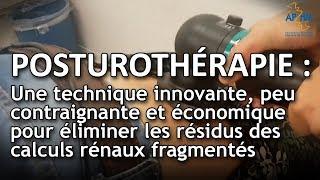La posturothérapie : une technique innovante pour éliminer les résidus des calculs rénaux fragmentés