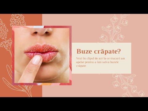 Ce solutii am gasit pentru tratarea buzelor crapate