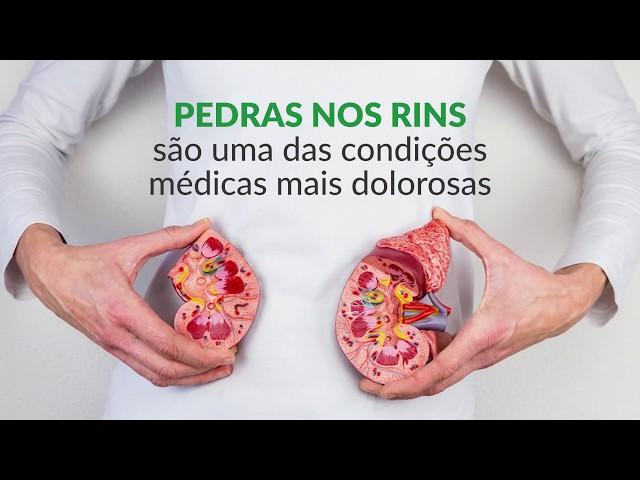 PEDRAS NOS RINS | Clínica InMeD