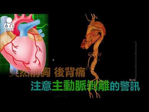 20180920「壯年期男性」的隱形殺手 主動脈破裂死亡風險高