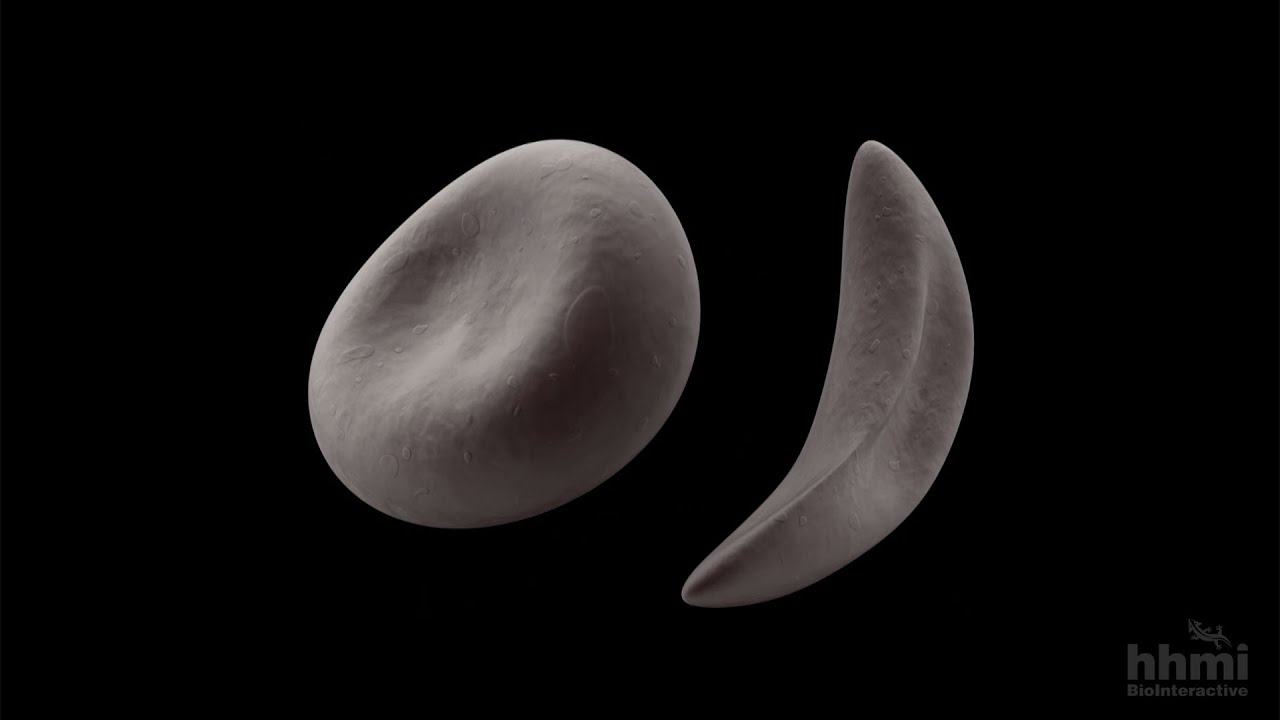 Everyone with the sickle cell gene mutation descended from the same ancestor 7300 years ago