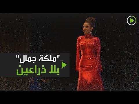 -ملكة جمال- بلا ذراعين
