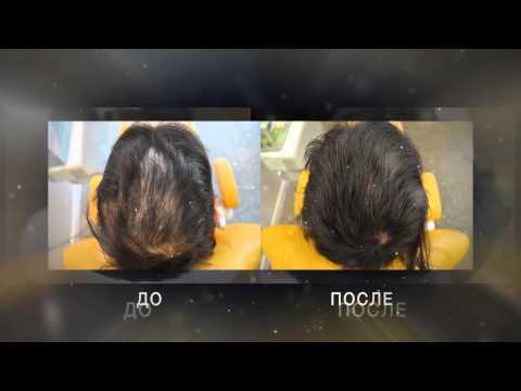 Выпадение волос у женщин. Лечение