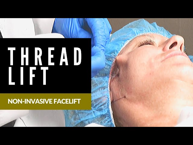 Non-Invasive Facelift | Thread Lift | Young Medical Spa