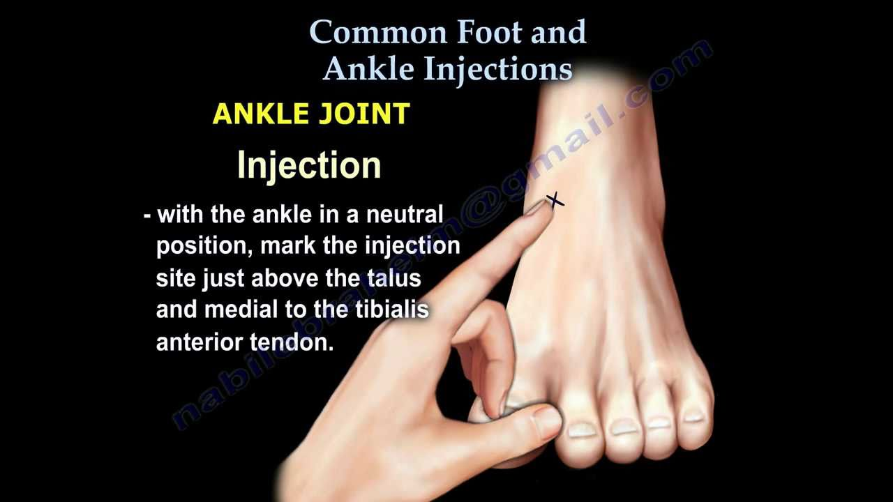 Common Foot And Ankle Injections Everything You Need To Know Dr