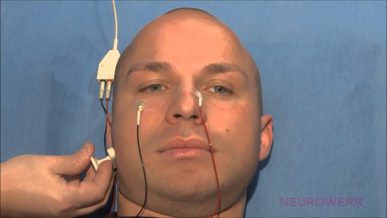 conduction facial of nerve study Nerve