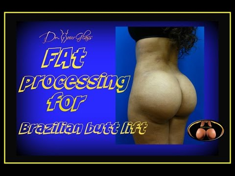 brazilian-butt-lift-fat-transfer-surgery-technique