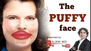 Fillers and Botox Look Fake