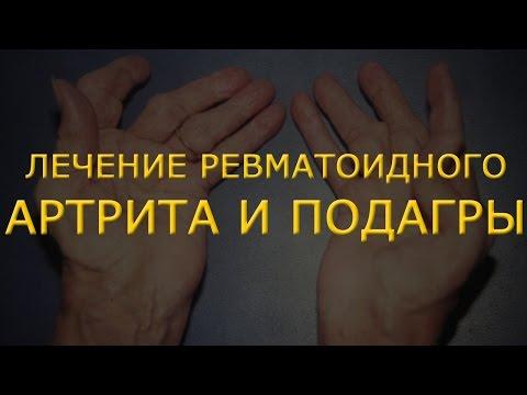 Ревматоидный артрит: симптомы и лечение, диагностика