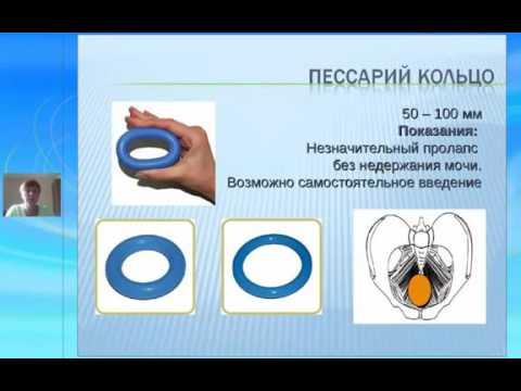 Черная Н. Е. Тонкое и толстое кольцо пессарии