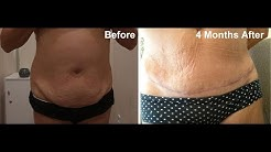 hqdefault - Lower Back Pain After Abdominoplasty