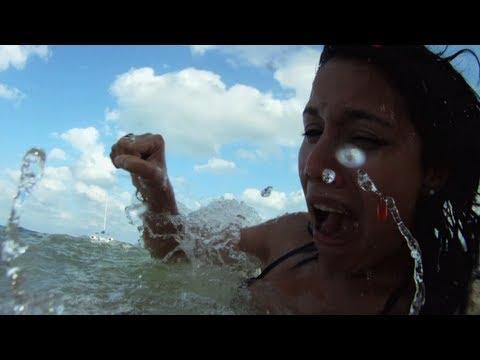 Shark Attack Survivor