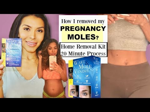 HOW TO REMOVE MY PREGNANCY MOLES?|  Home Mole Removal Kit (20 Minutes)