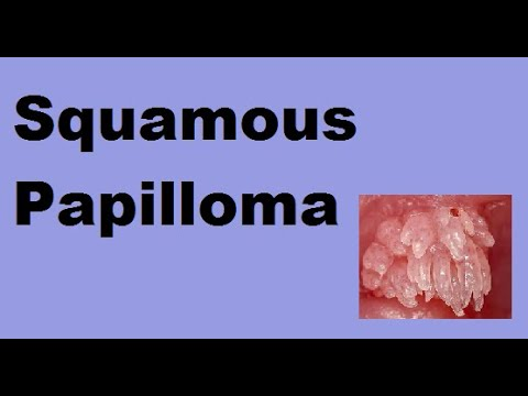 definition of papilloma in dentistry)