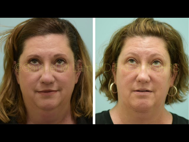 Dallas Lower Blepharoplasty, Fat Transfer, Chin Augmentation, and Liposuction Before and After