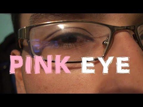 week-28---pink-eye-(season-1-episode-57)