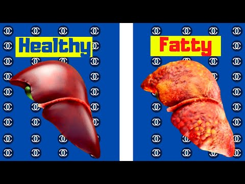 why-intermittent-fasting-fixes-insulin-resistance