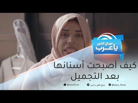 خافت من الضحك لسنوات طويلة.. فتاة مغربية تضحك أخيراً!